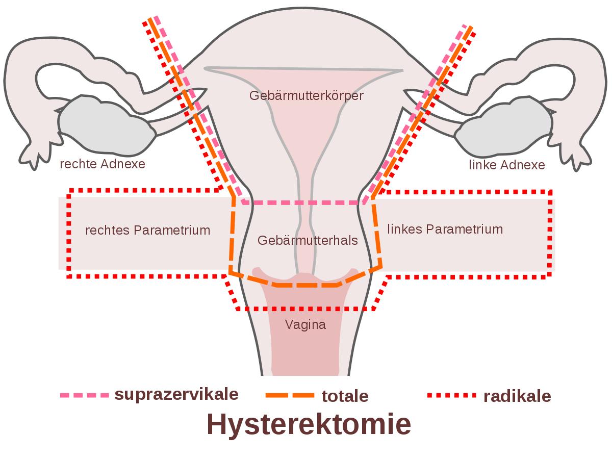 Hysterektomie, Gebärmutterentfernung